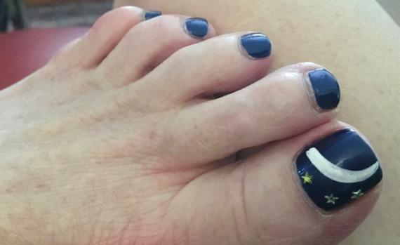 Eclipse toenail
