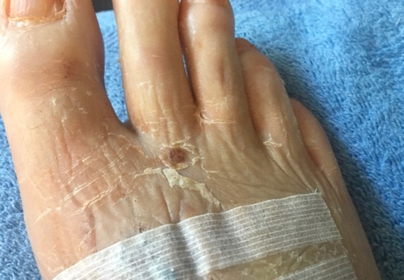 Front foot wrinkles